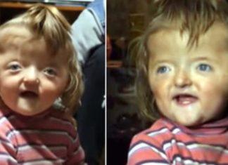 Criança com crânio deformado