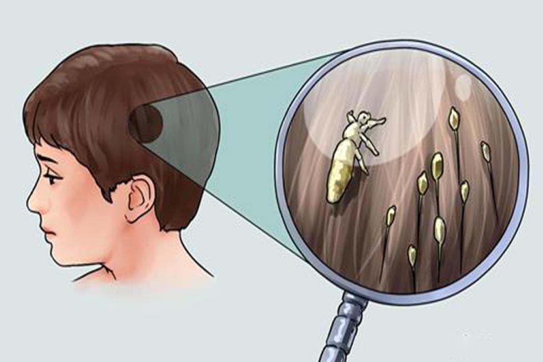 forma eficaz para eliminar piolhos
