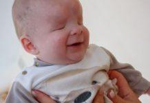 Bebé sem olhos