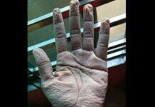 mão médico enrugada