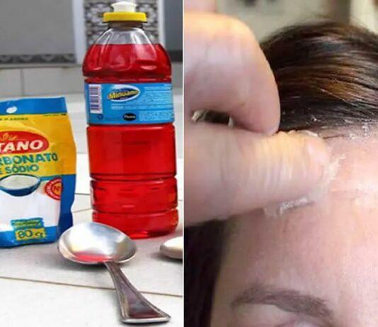eliminar manchas de tinta de cabelo